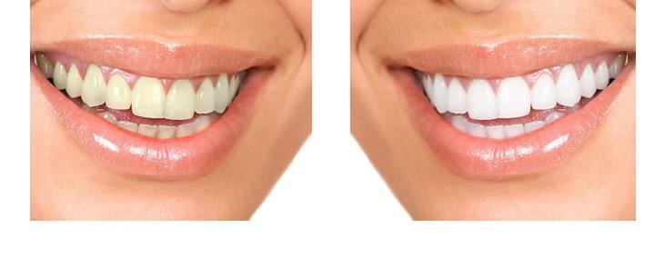 FUN but REAL: A fehér fogak szebbek a világosszürkénél – ugyanez érvényes a sorkapcsokra is